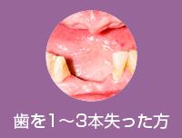 歯を1~3本失った方